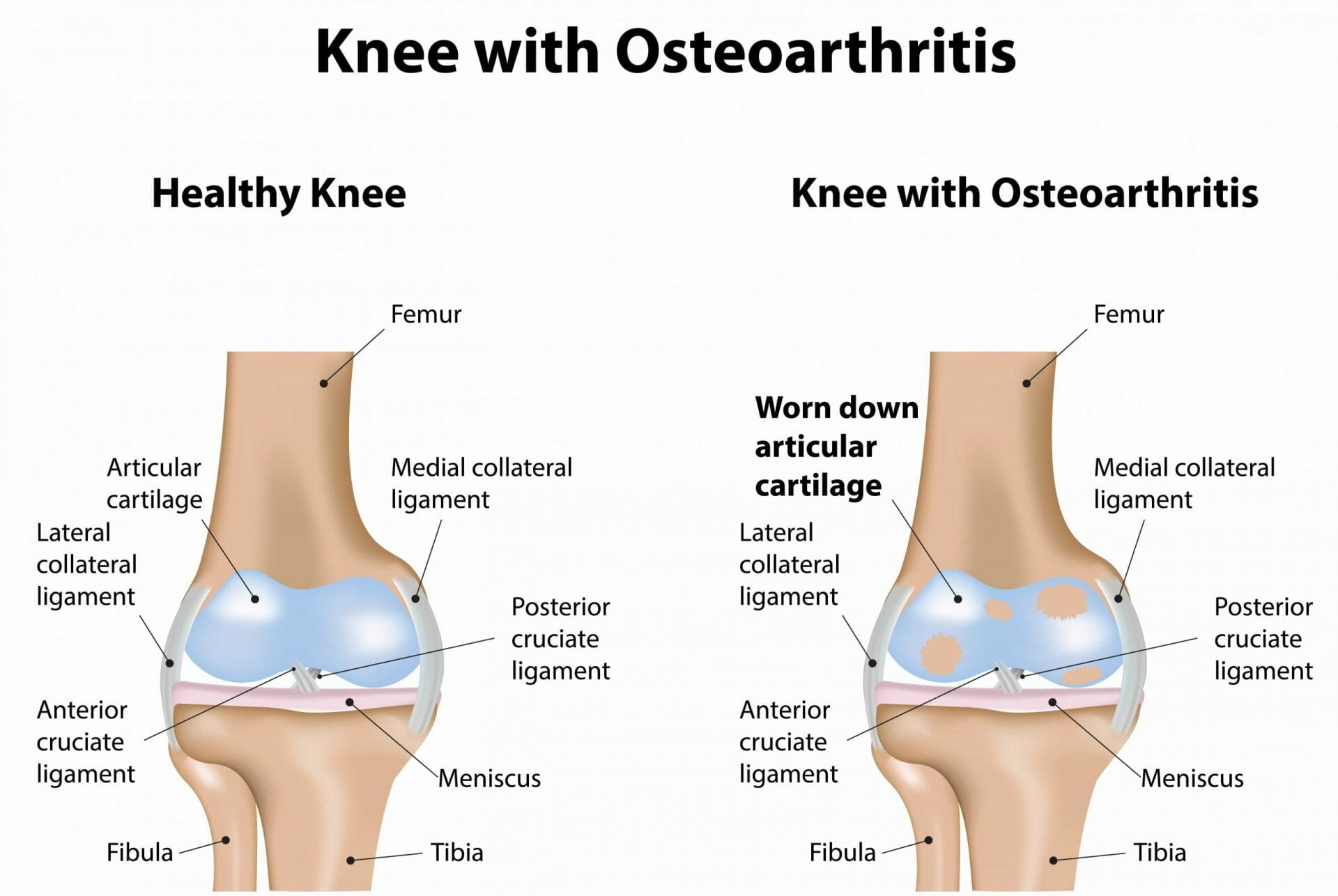Comparison of healthy knee and knee with osteoarthritis