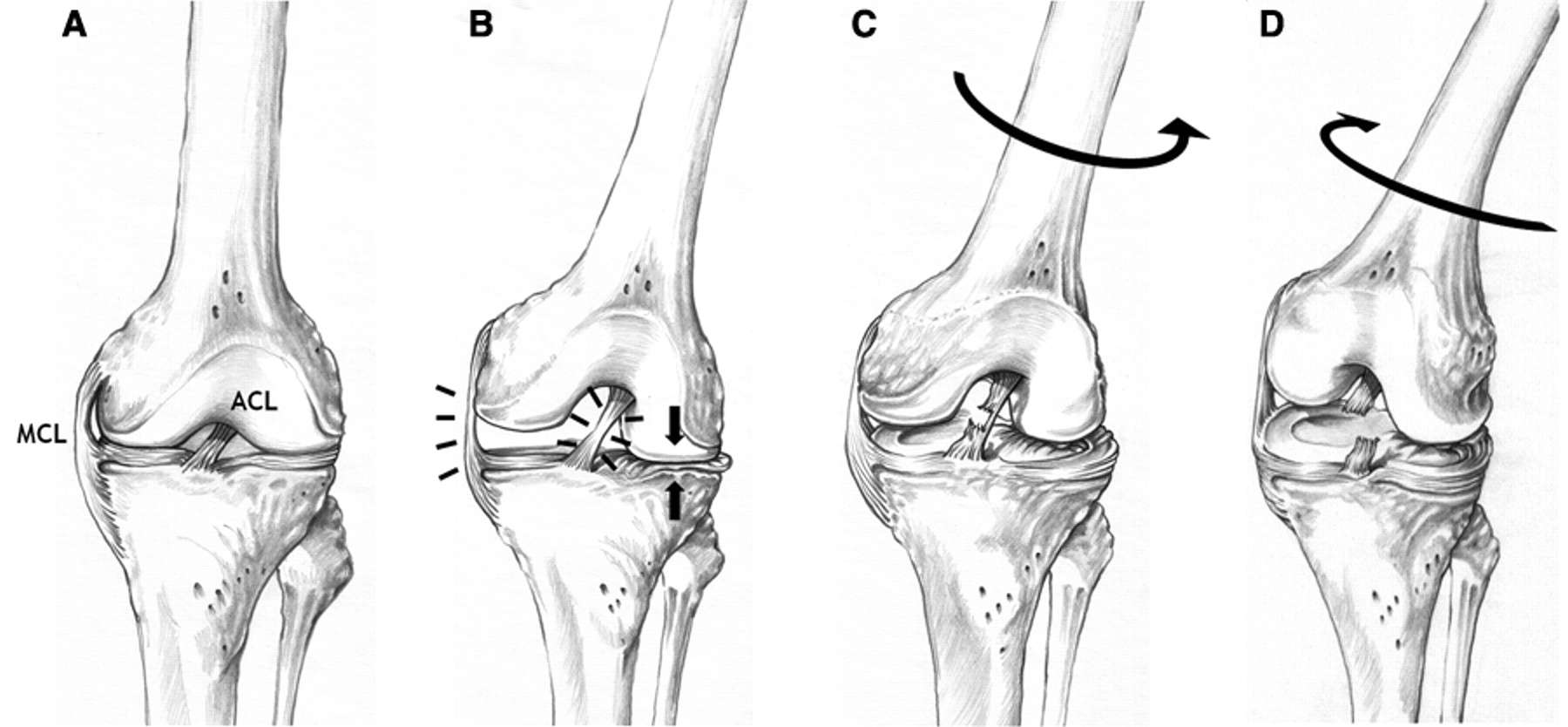 Cause of ACL Injury