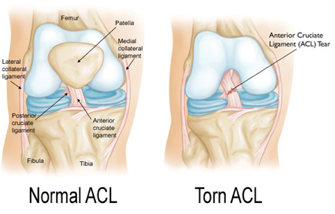 Normal and torn ACL