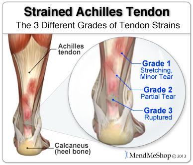 Strained achilles tendon