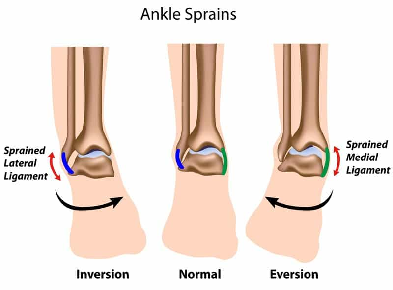 Ankle sprains inversion normal eversion
