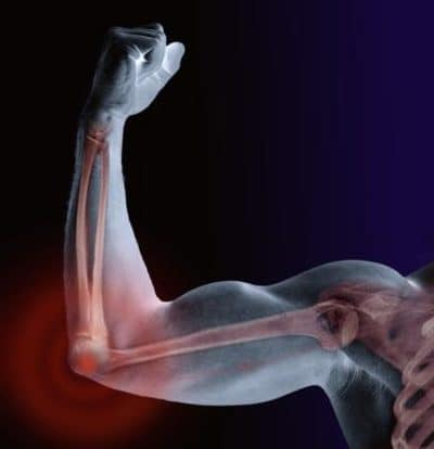 chronic elbow injuries
