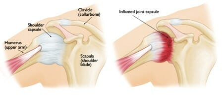 inflamed joint capsule